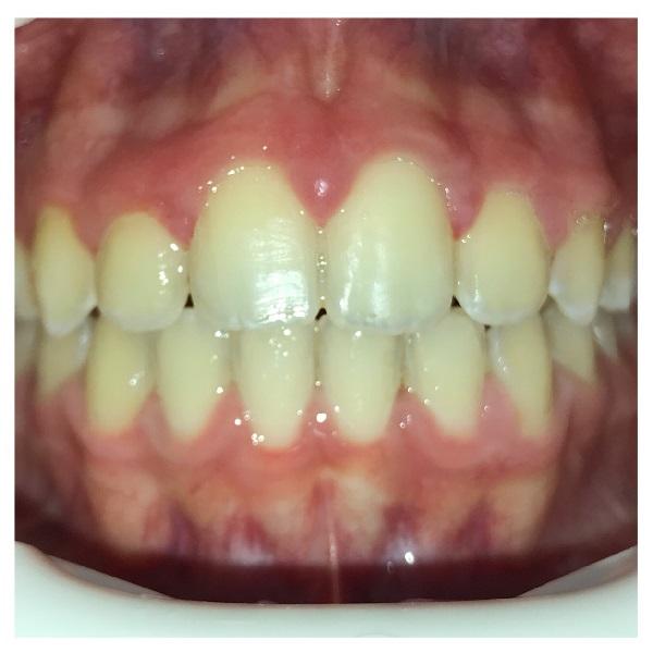 Paziente Ortodonzia Studio Mari - dopo