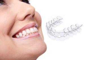 allineatore invisibile ortodonzia