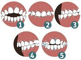 malocclusioni in ortodonzia